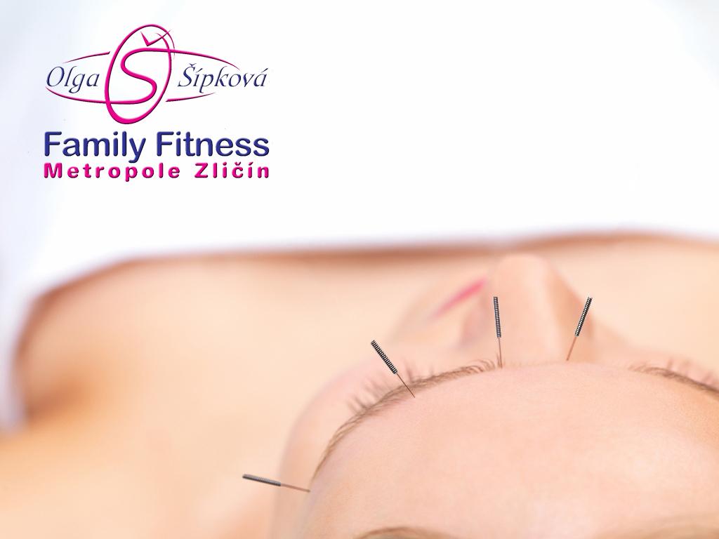 akupunktura%20hlavn%20fotka%20copy